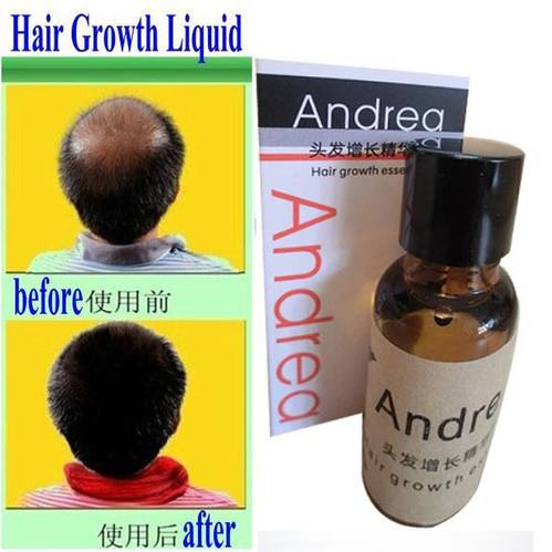 Jual ANDREA HAIR GROWTH ESSENCE